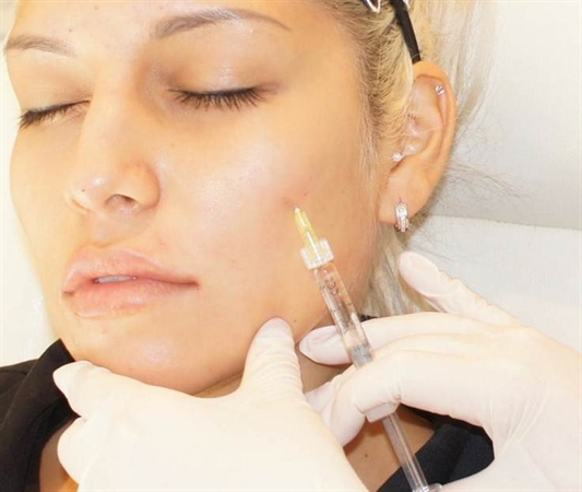 Three Advantages Of Getting Cosmetic Injectable Treatments